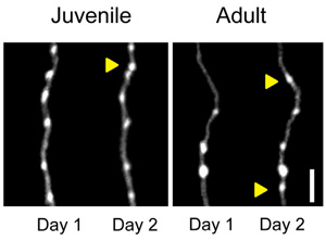 Long-range orbitofrontal and amygdala axons show divergent patterns of maturation in the frontal cortex across adolescence